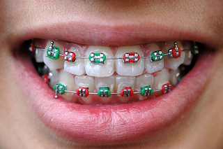 What role do elastics (rubber bands) play in orthodontics