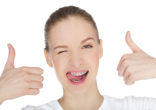 Five Fun Ways to Count Down Your Braces Time