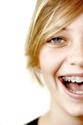 Besides straight teeth, what are the benefits of braces